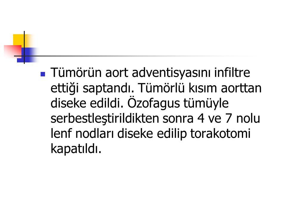 Tümörün aort adventisyasını infiltre ettiği saptandı