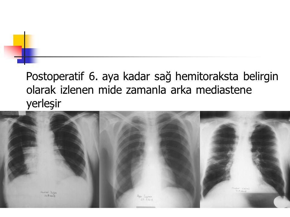 Postoperatif 6.
