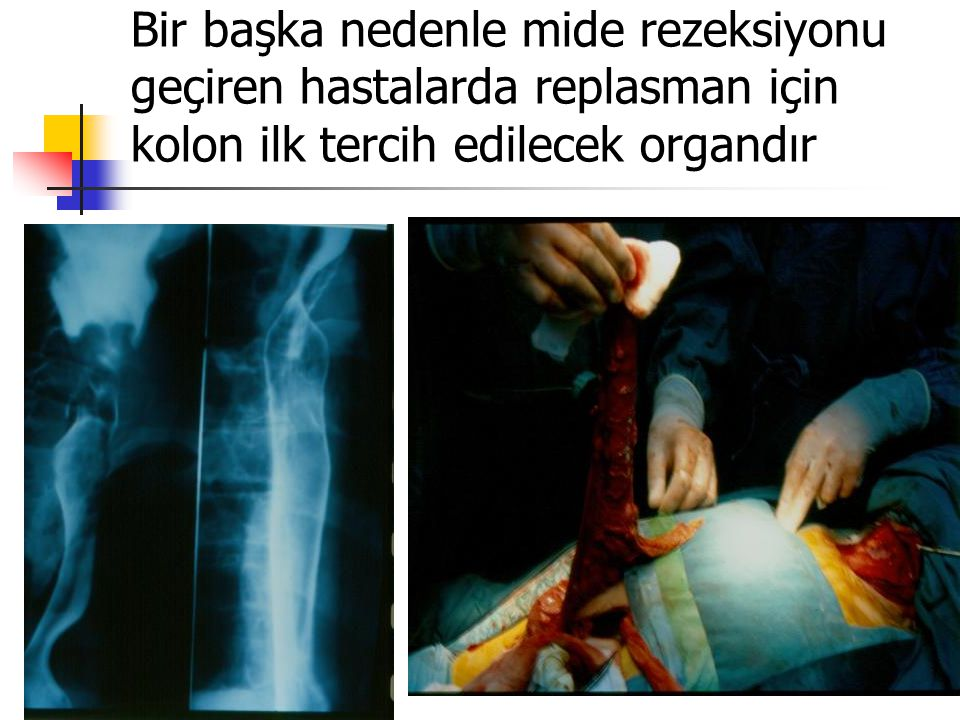 Bir başka nedenle mide rezeksiyonu geçiren hastalarda replasman için kolon ilk tercih edilecek organdır
