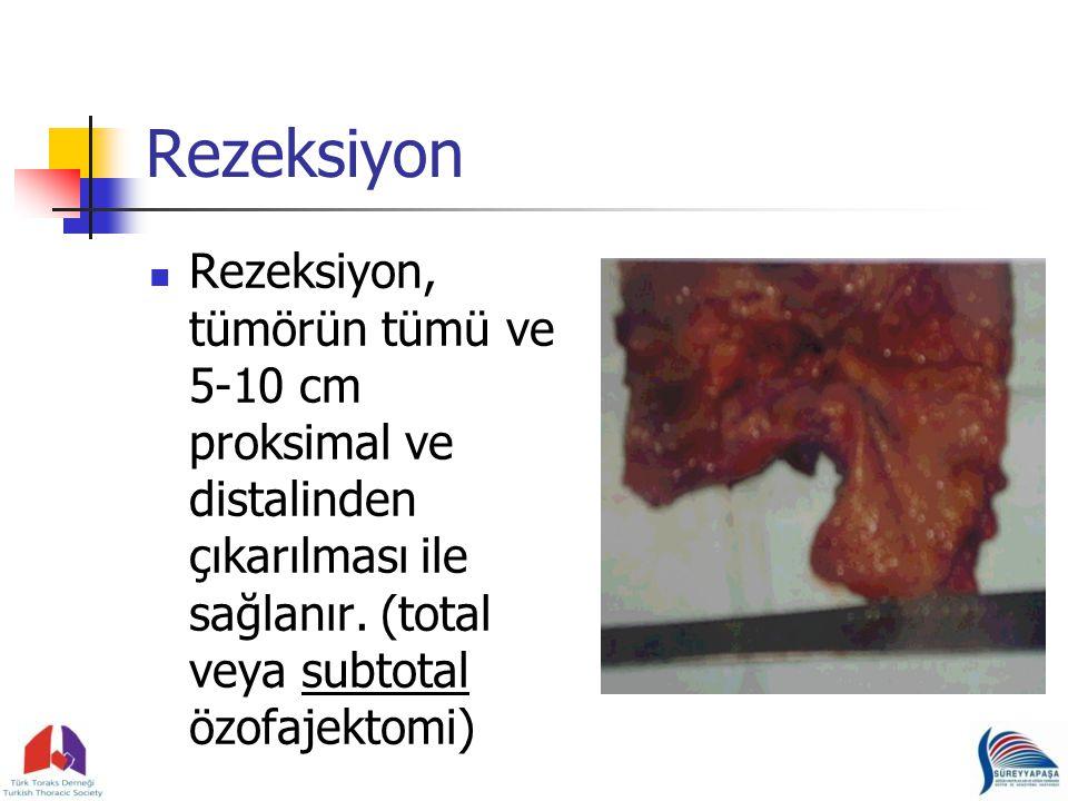 Rezeksiyon Rezeksiyon, tümörün tümü ve 5-10 cm proksimal ve distalinden çıkarılması ile sağlanır.