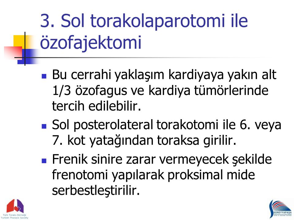 3. Sol torakolaparotomi ile özofajektomi