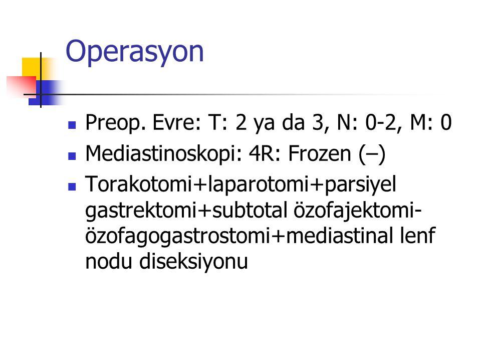 Operasyon Preop. Evre: T: 2 ya da 3, N: 0-2, M: 0
