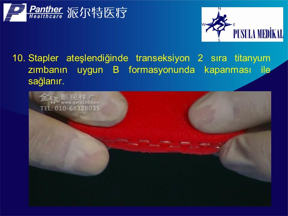 Stapler ateşlendiğinde transeksiyon 2 sıra titanyum zımbanın uygun B formasyonunda kapanması ile sağlanır.