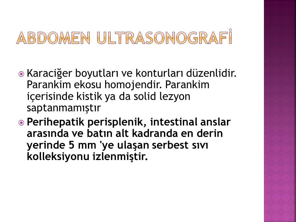 ABDOMEN ULTRASONOGRAFİ