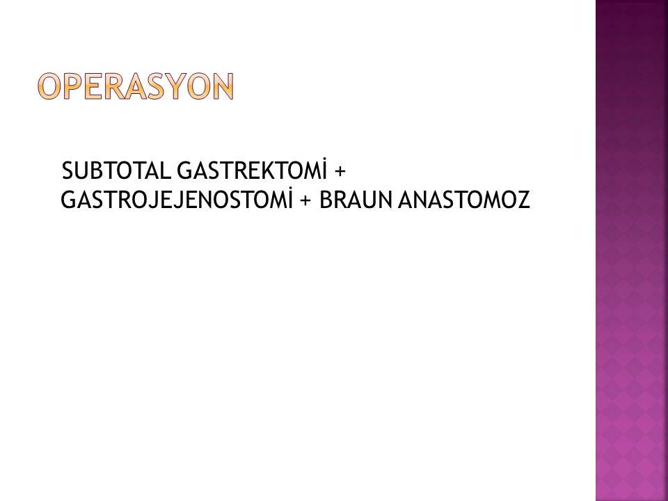 OPERASYON SUBTOTAL GASTREKTOMİ + GASTROJEJENOSTOMİ + BRAUN ANASTOMOZ