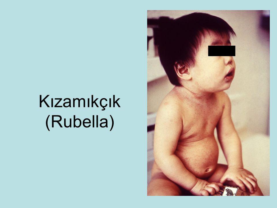 Kızamıkçık (Rubella)