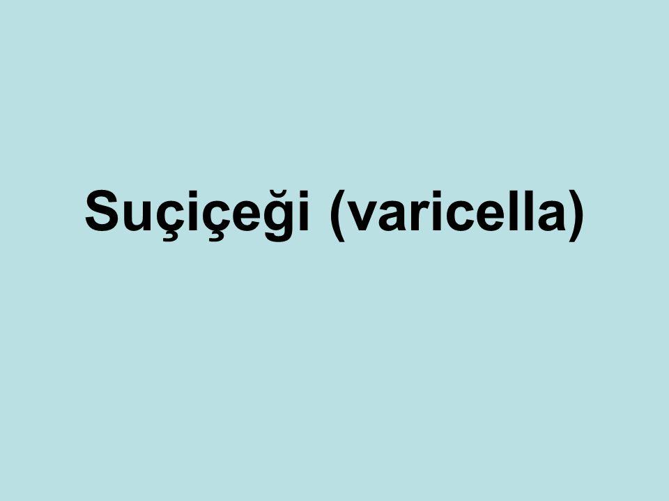 Suçiçeği (varicella)