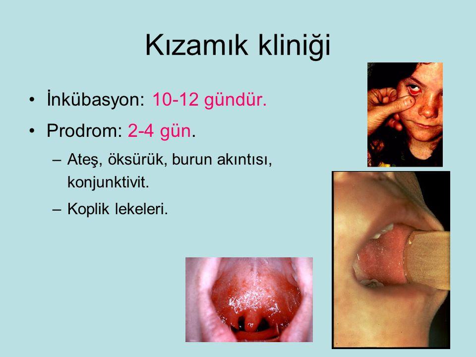 Kızamık kliniği İnkübasyon: 10-12 gündür. Prodrom: 2-4 gün.