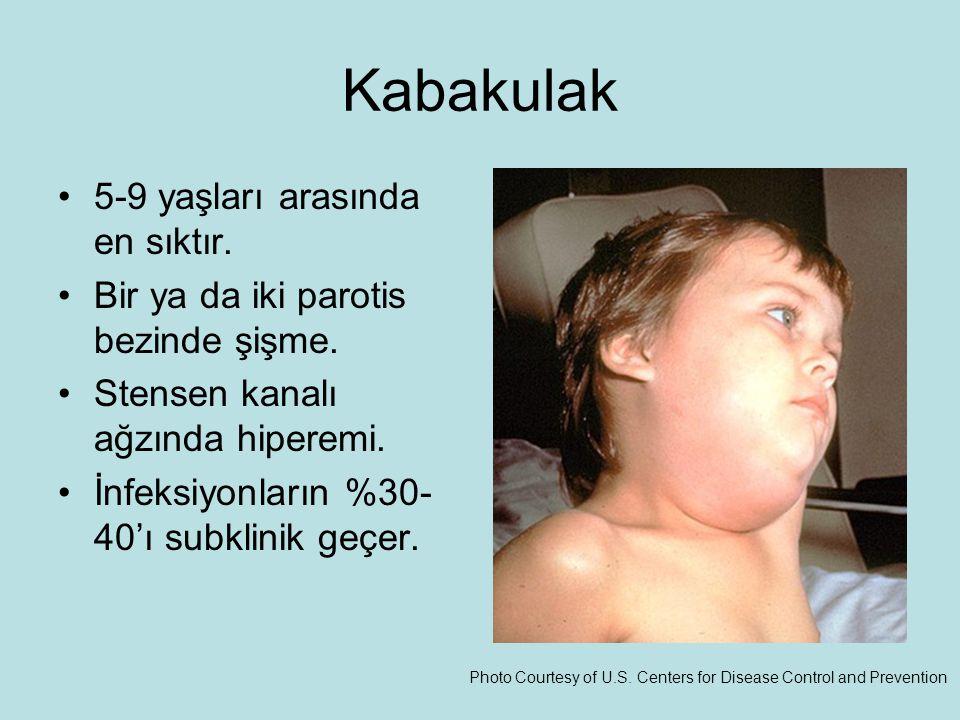 Kabakulak 5-9 yaşları arasında en sıktır.