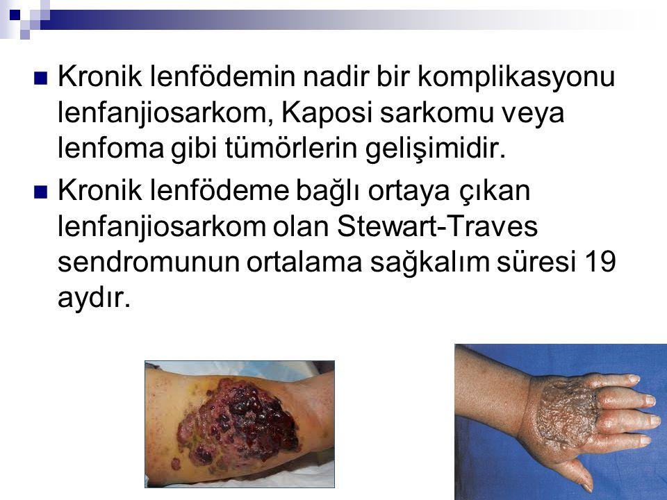 Kronik lenfödemin nadir bir komplikasyonu lenfanjiosarkom, Kaposi sarkomu veya lenfoma gibi tümörlerin gelişimidir.