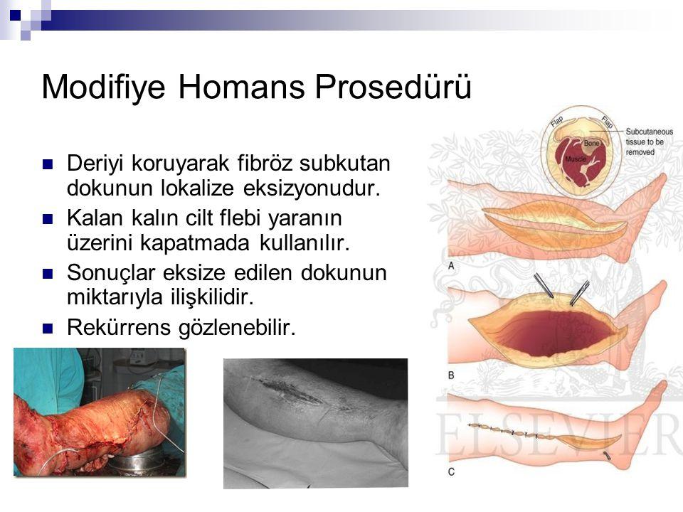Modifiye Homans Prosedürü