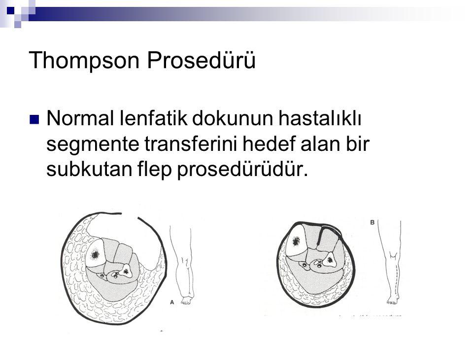 Thompson Prosedürü Normal lenfatik dokunun hastalıklı segmente transferini hedef alan bir subkutan flep prosedürüdür.