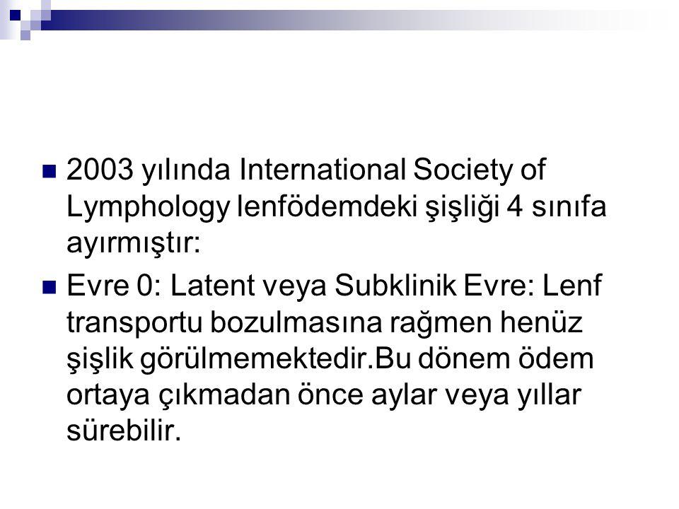 2003 yılında International Society of Lymphology lenfödemdeki şişliği 4 sınıfa ayırmıştır: