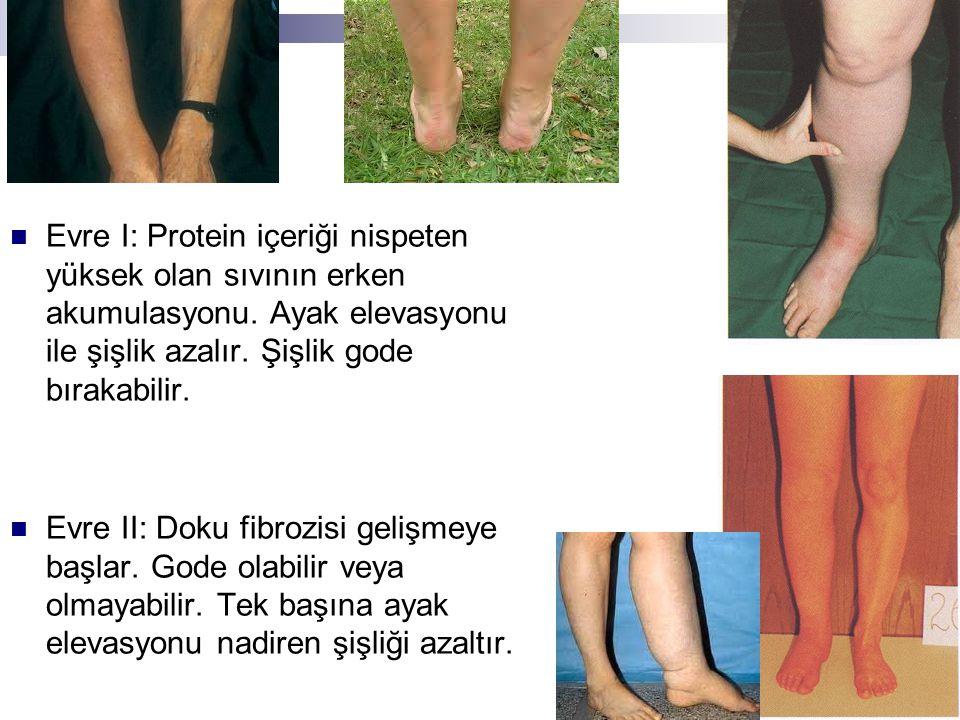 Evre I: Protein içeriği nispeten yüksek olan sıvının erken akumulasyonu. Ayak elevasyonu ile şişlik azalır. Şişlik gode bırakabilir.
