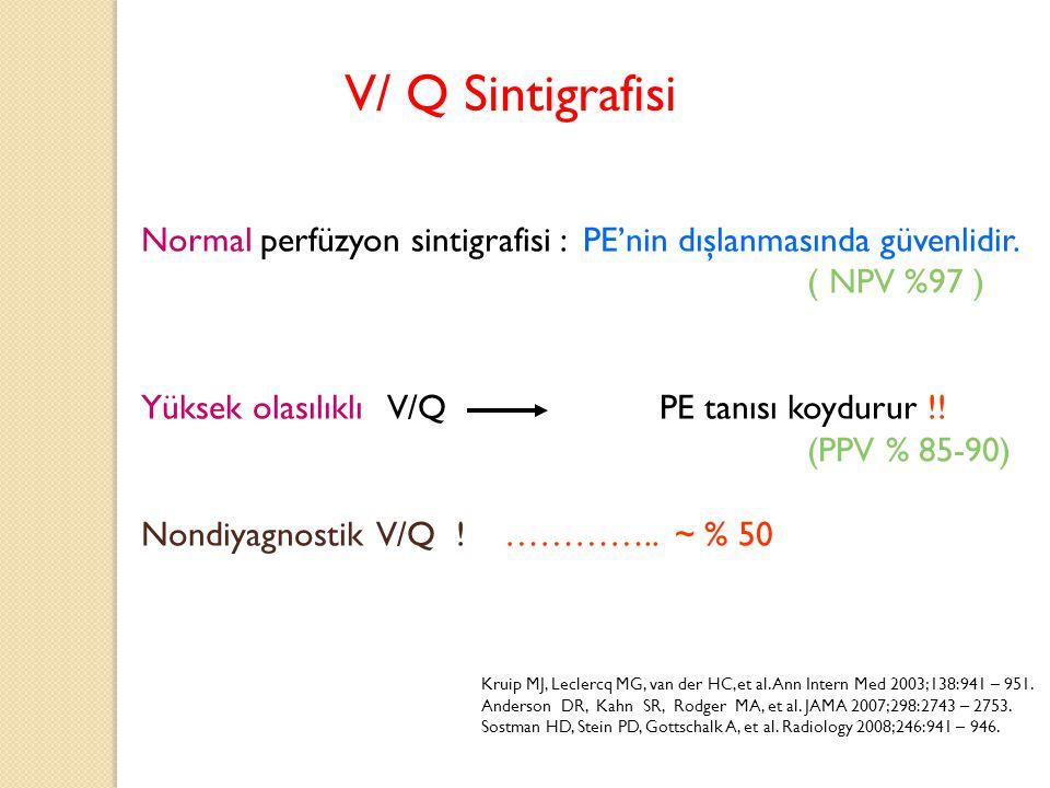 V/ Q Sintigrafisi Normal perfüzyon sintigrafisi : PE'nin dışlanmasında güvenlidir. ( NPV %97 )