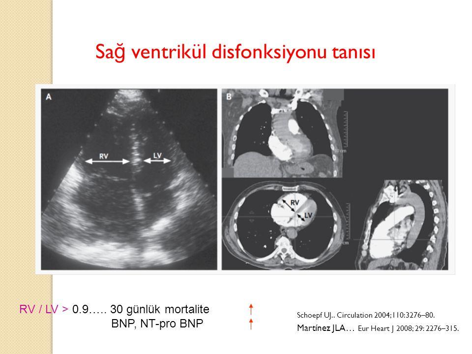 Sağ ventrikül disfonksiyonu tanısı
