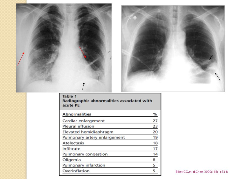 Elliot CG,et al.Chest 2000;118(1):33-8