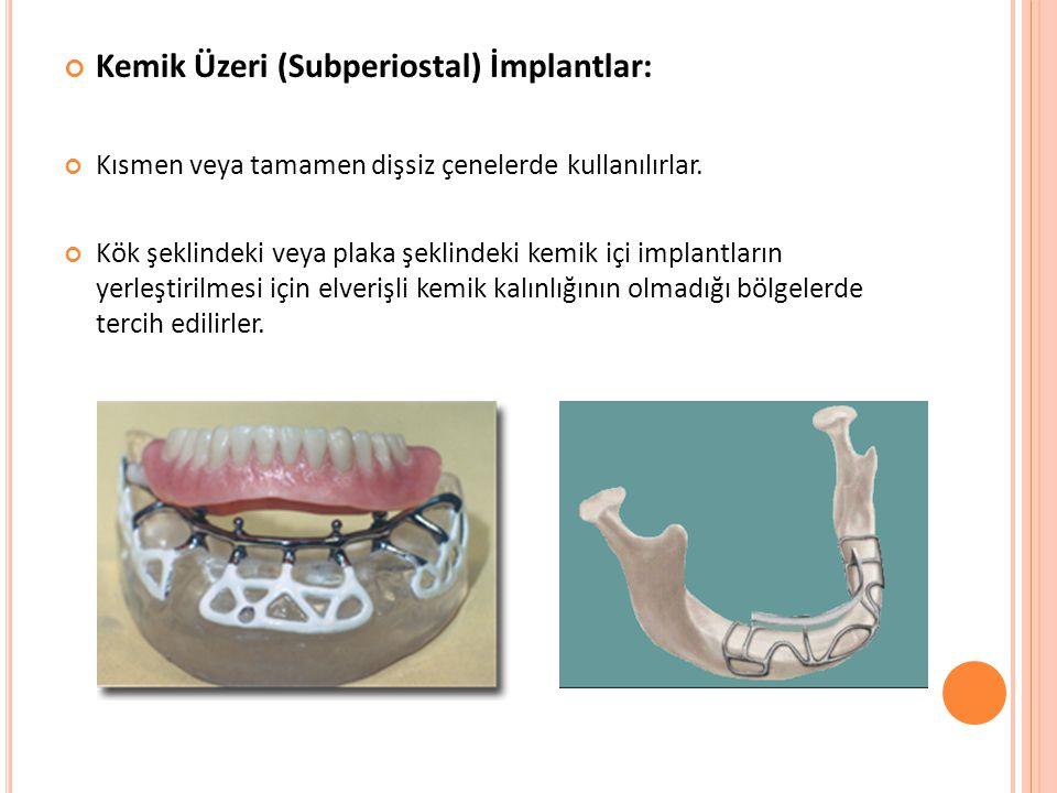 Kemik Üzeri (Subperiostal) İmplantlar:
