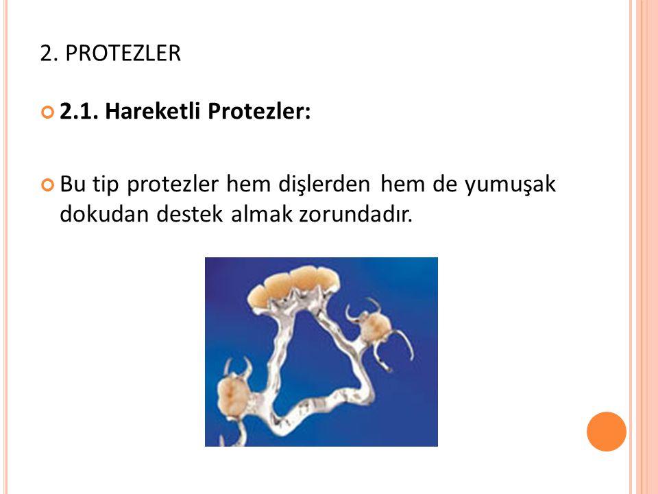 2. PROTEZLER 2.1.