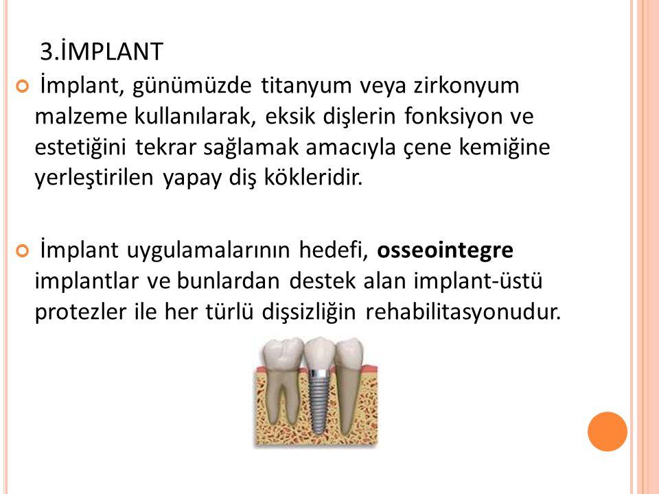 3.İMPLANT