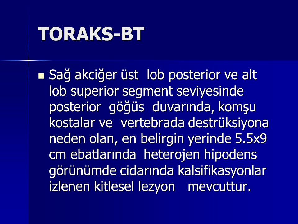 TORAKS-BT