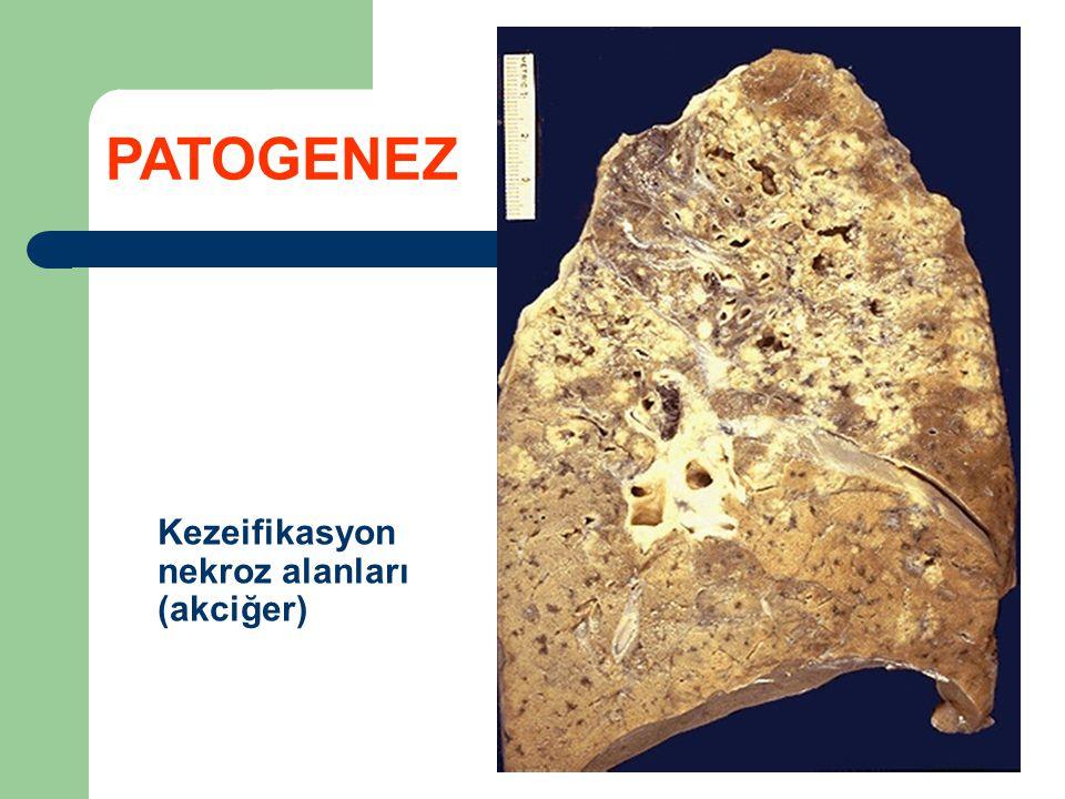 PATOGENEZ Kezeifikasyon nekroz alanları (akciğer)