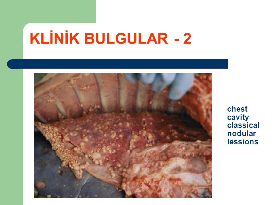 KLİNİK BULGULAR - 2 chest cavity classical nodular lessions