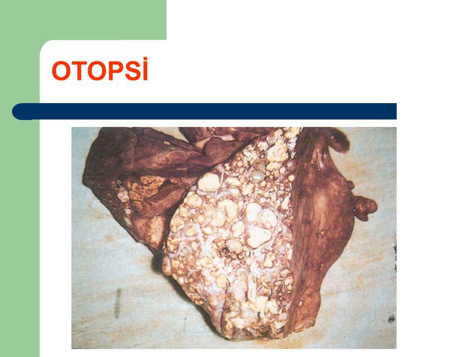 OTOPSİ