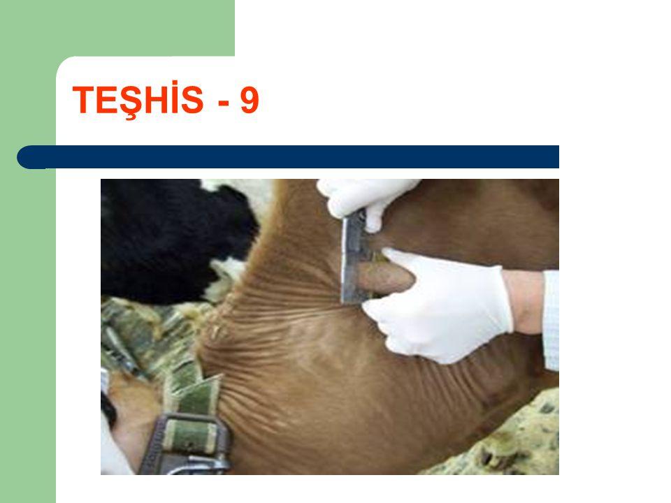 TEŞHİS - 9