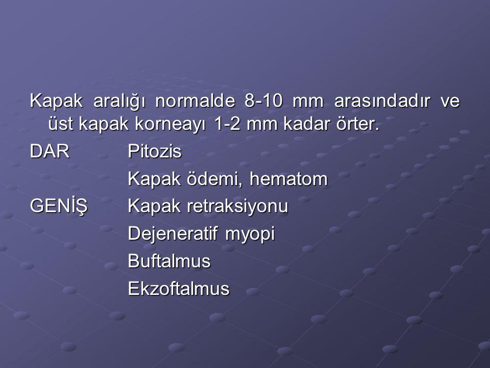 Kapak aralığı normalde 8-10 mm arasındadır ve üst kapak korneayı 1-2 mm kadar örter.