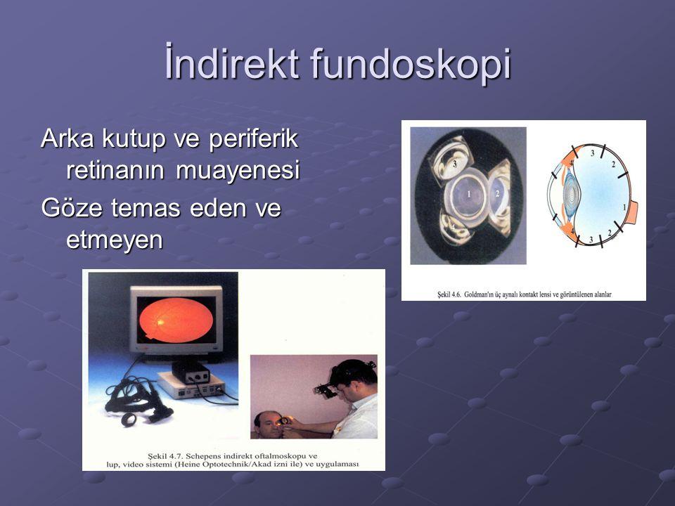 İndirekt fundoskopi Arka kutup ve periferik retinanın muayenesi