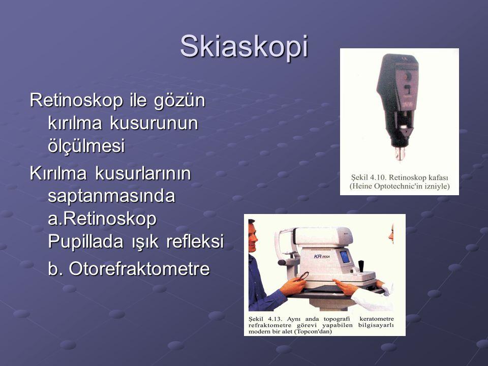Skiaskopi Retinoskop ile gözün kırılma kusurunun ölçülmesi