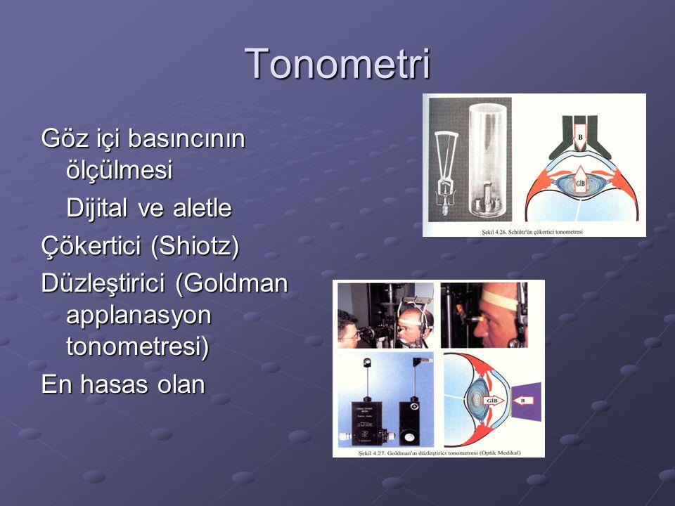Tonometri Göz içi basıncının ölçülmesi Dijital ve aletle