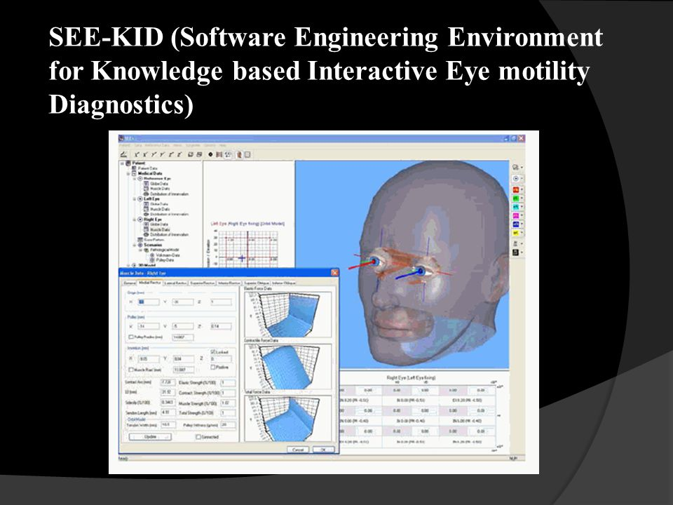 SEE-KID (Software Engineering Environment for Knowledge based Interactive Eye motility Diagnostics)