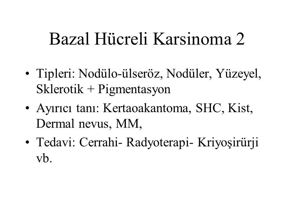 Bazal Hücreli Karsinoma 2