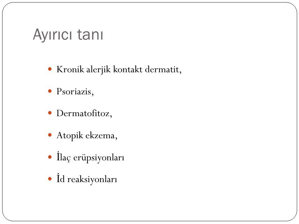 Ayırıcı tanı Kronik alerjik kontakt dermatit, Psoriazis, Dermatofitoz,
