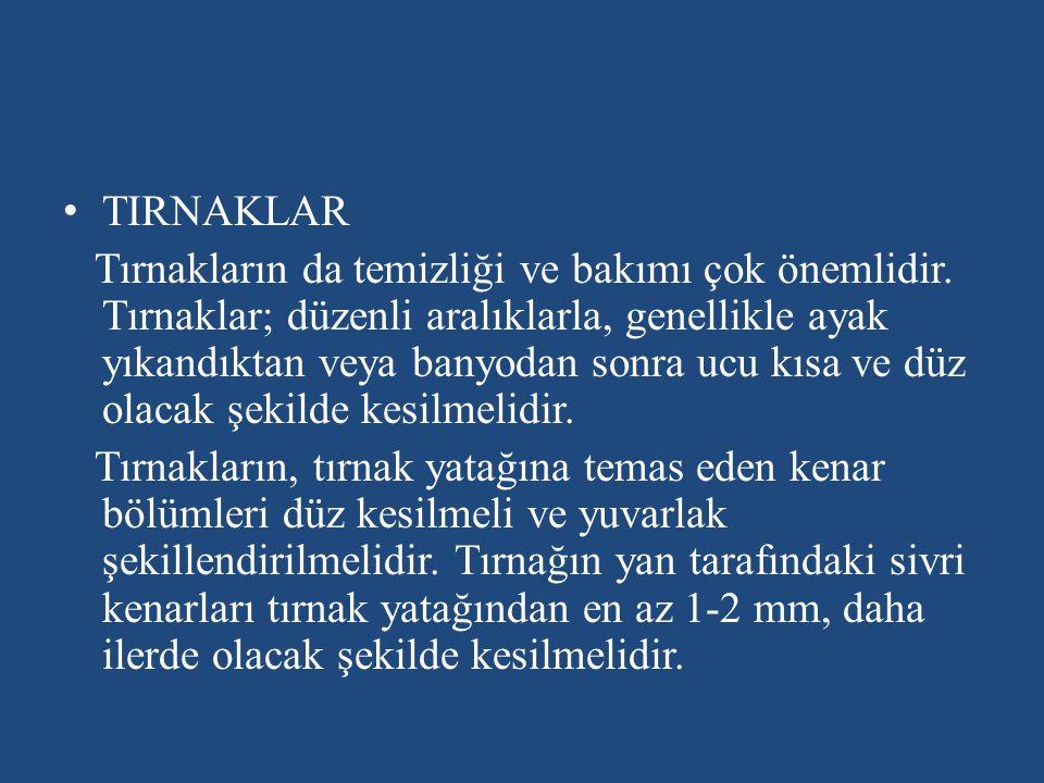 TIRNAKLAR