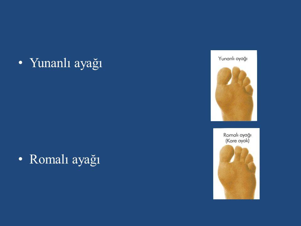 Yunanlı ayağı Romalı ayağı
