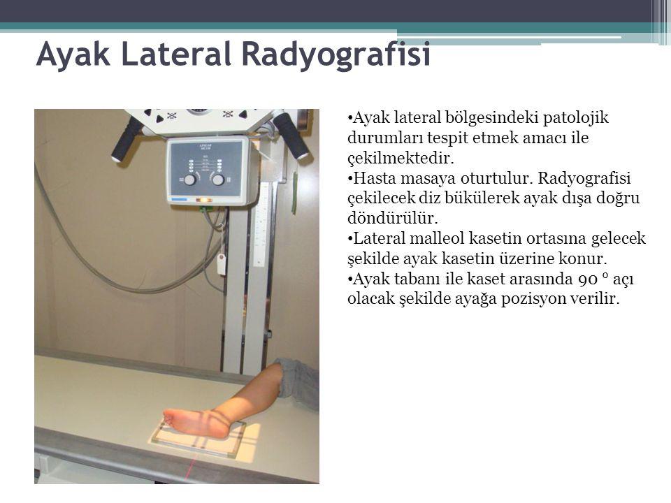 Ayak Lateral Radyografisi