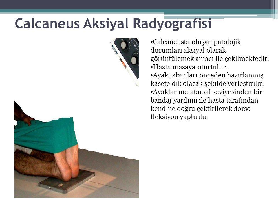 Calcaneus Aksiyal Radyografisi