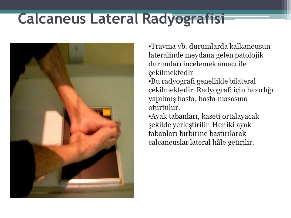 Calcaneus Lateral Radyografisi