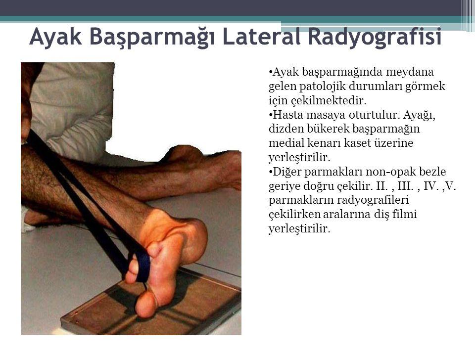 Ayak Başparmağı Lateral Radyografisi