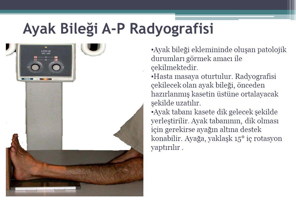 Ayak Bileği A-P Radyografisi