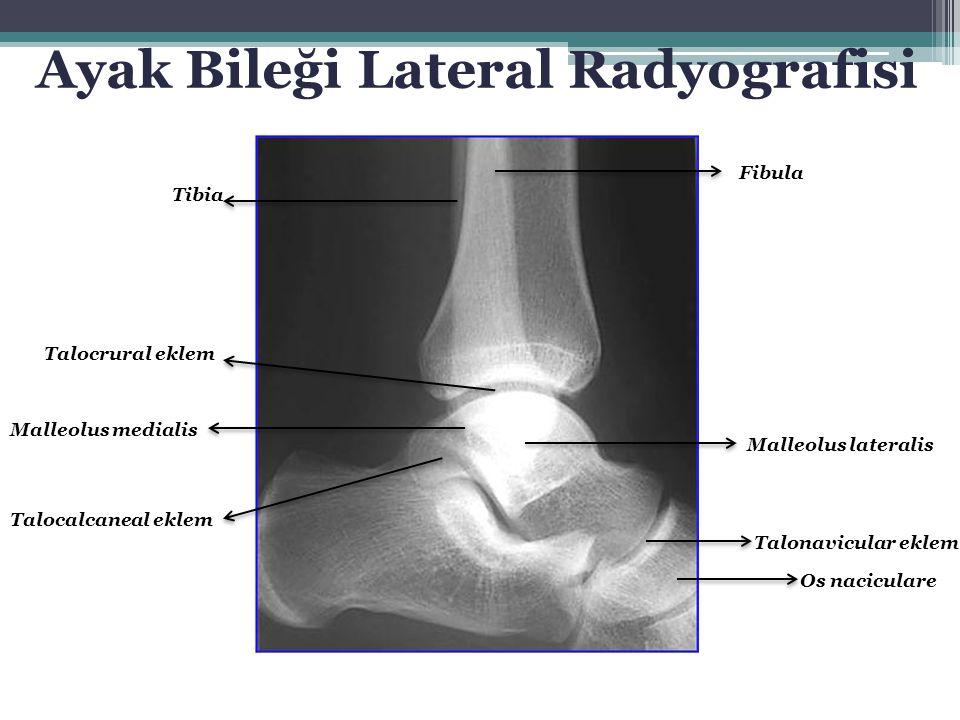 Ayak Bileği Lateral Radyografisi