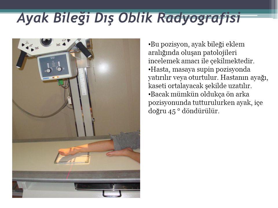 Ayak Bileği Dış Oblik Radyografisi