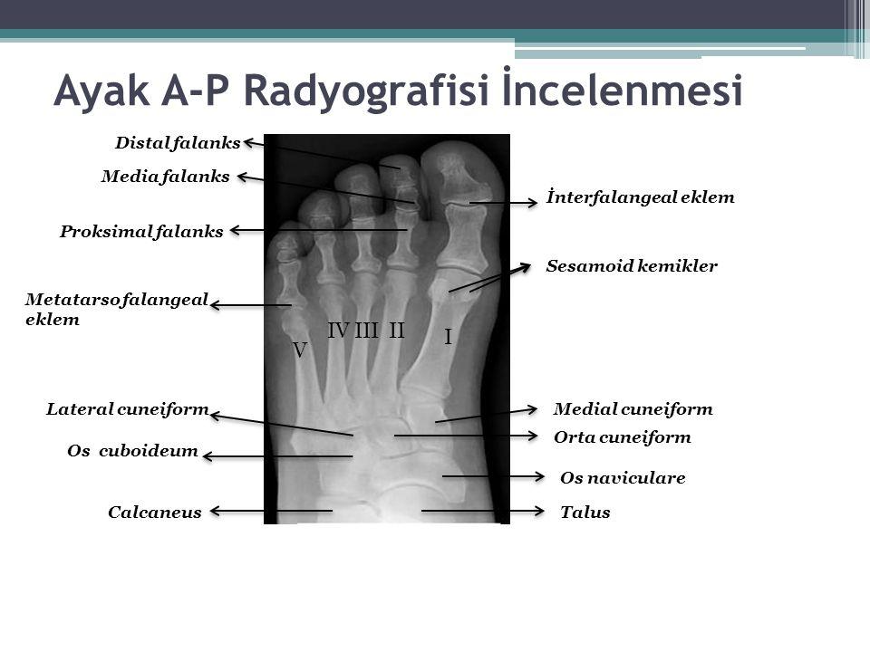 Ayak A-P Radyografisi İncelenmesi
