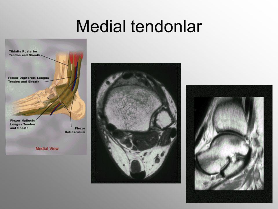 Medial tendonlar