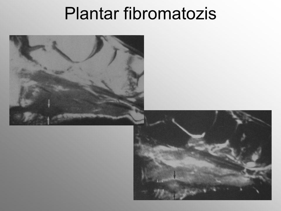Plantar fibromatozis