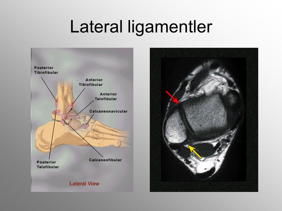 Lateral ligamentler