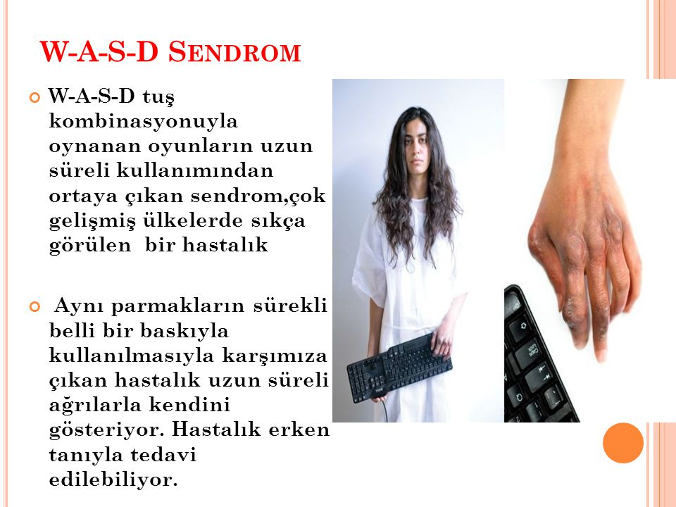 W-A-S-D Sendrom